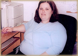 Photo of Patient Before Weight Loss Program